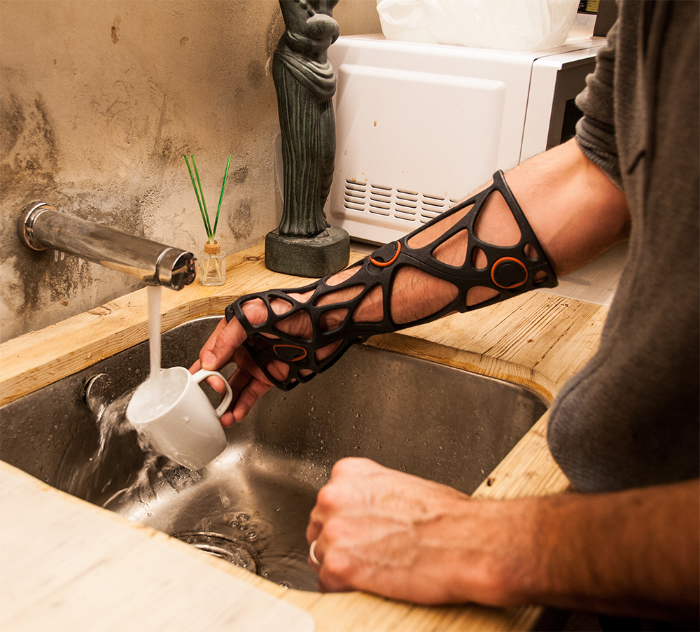 3-D printed casts will make daily tasks easier.