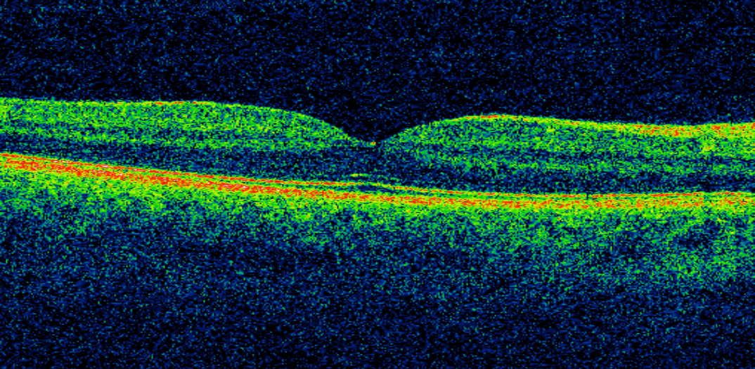 An image of the retina.