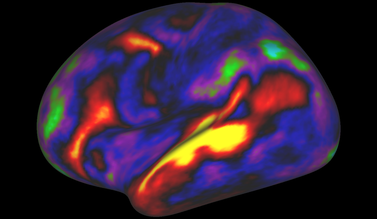 Researchers used an MRI scanner to watch brain activity while participants listened to stories. Red and yellow indicate regions of activation.