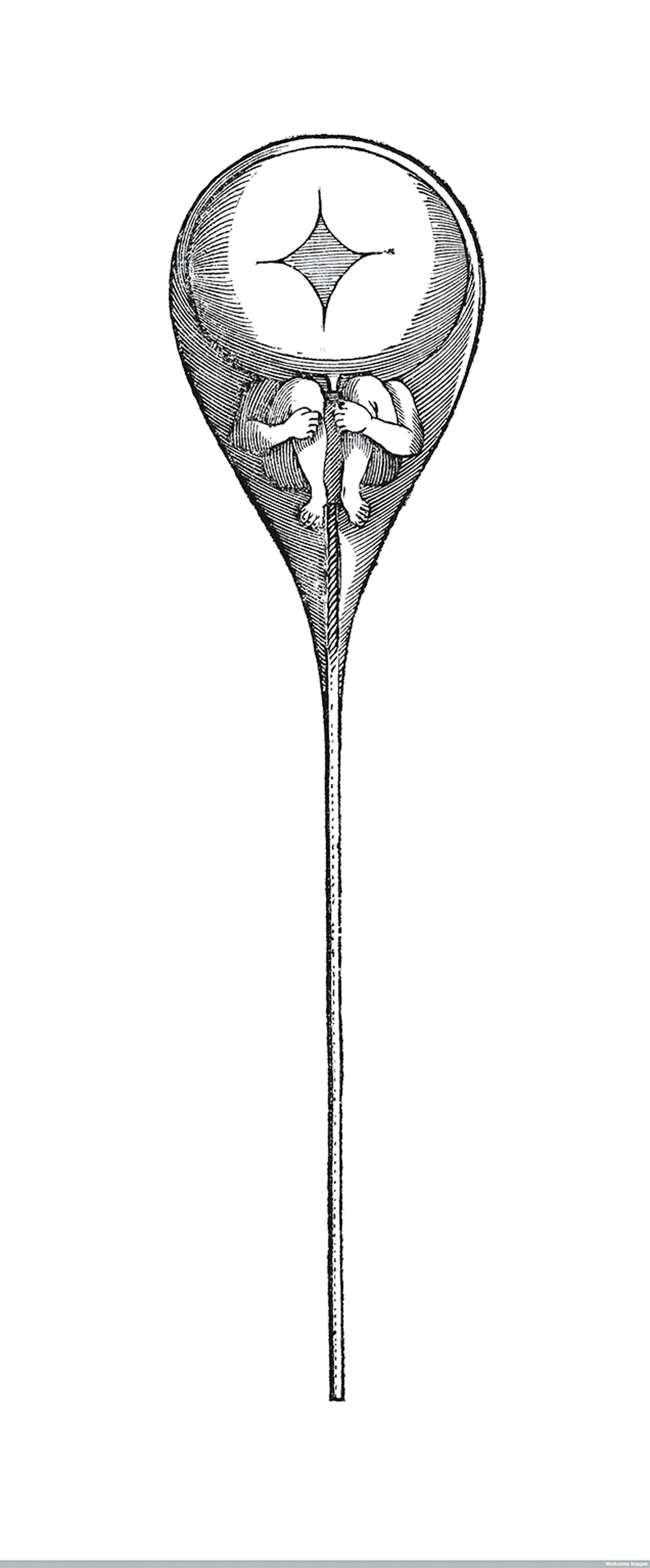 Sperm containing a homunculus (Nicholas Hartsoeker, 1695).