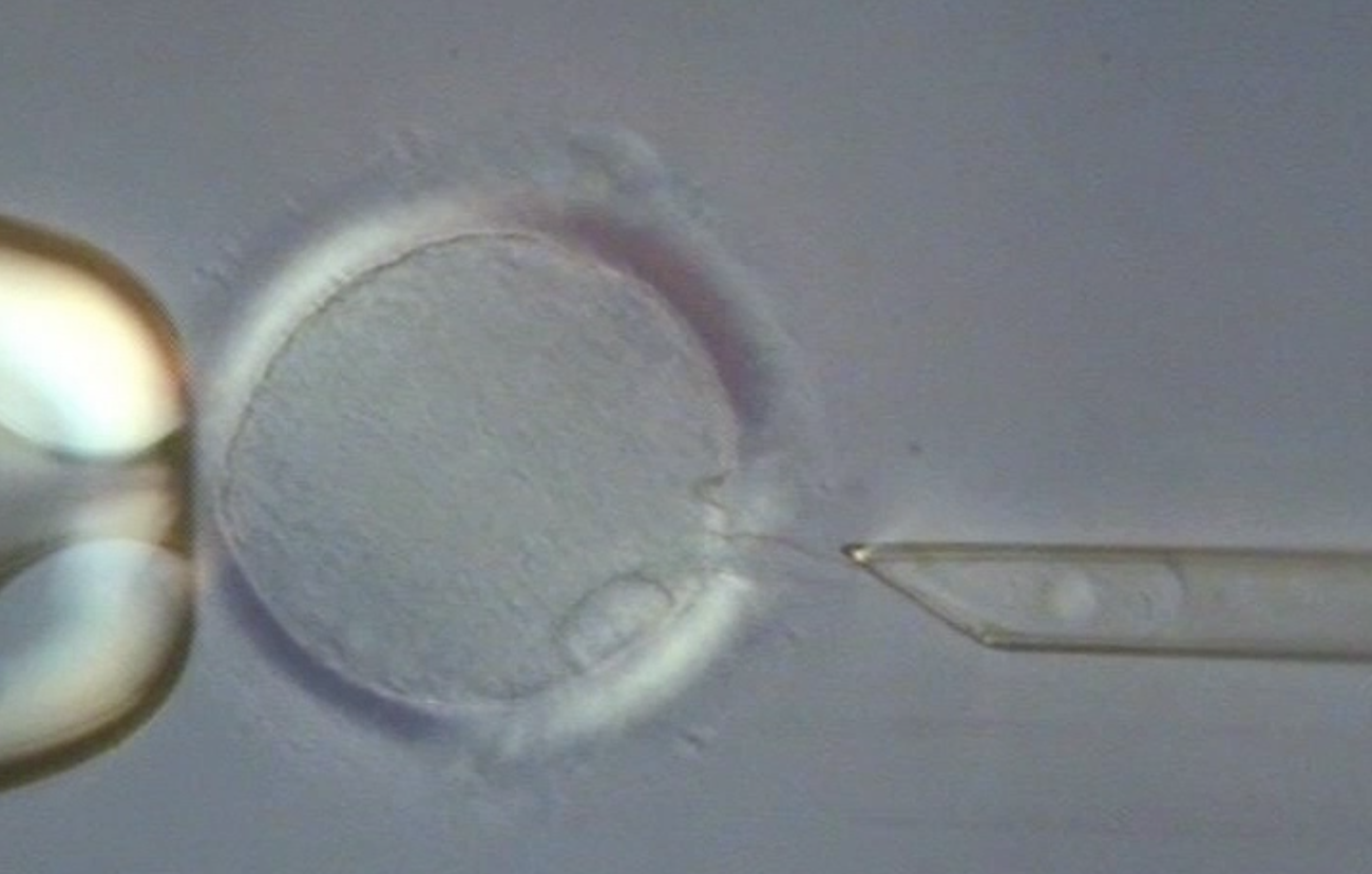 In a technique, created by John Zhang, called spindle nuclear transfer, the nucleus of a donor egg is removed and the DNA of another woman's egg is injected.